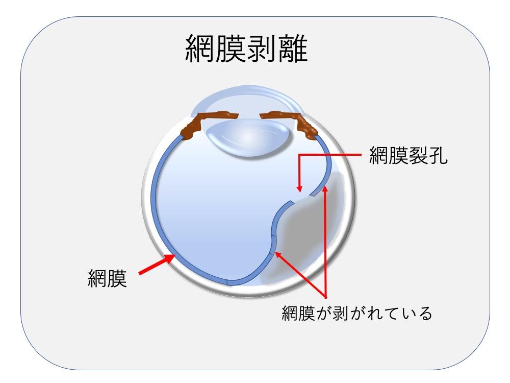 剥離 原因 網膜
