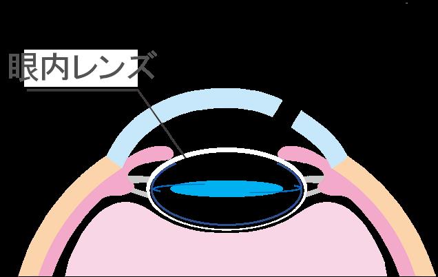 白内障手術方法4
